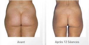 cellulite_stimulation_AVAP