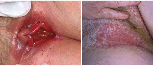 Vaginal infection sex anal